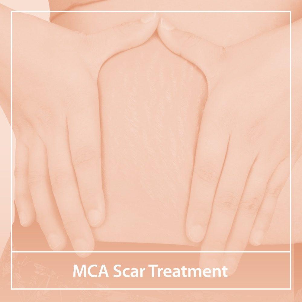 MCA Scar Treatment